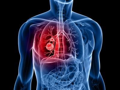 légzőszervi - A légzőszervi betegségek lelki háttere