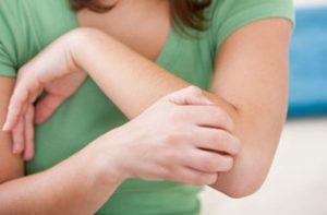 bőrviszketés 300x197 - 21 bőrbetegség lelki háttere