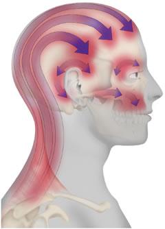 tartós fejfájás - Mit üzen a tartós fejfájás?